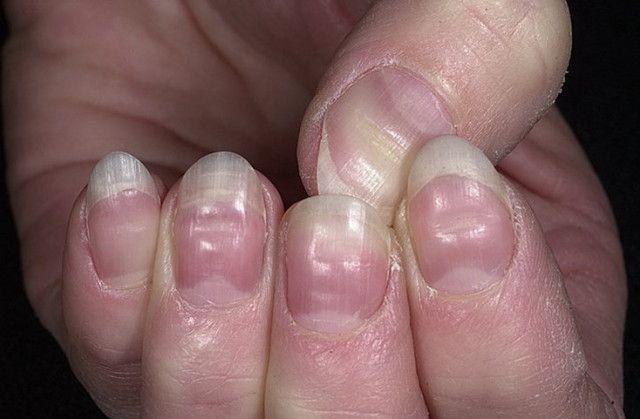 Плачевное состояние ногтевой пластины