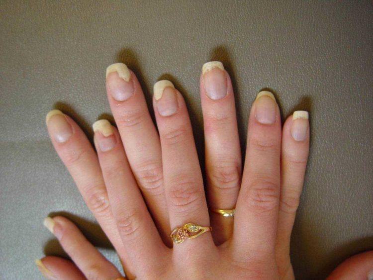 Так выглядит грибок ногтя