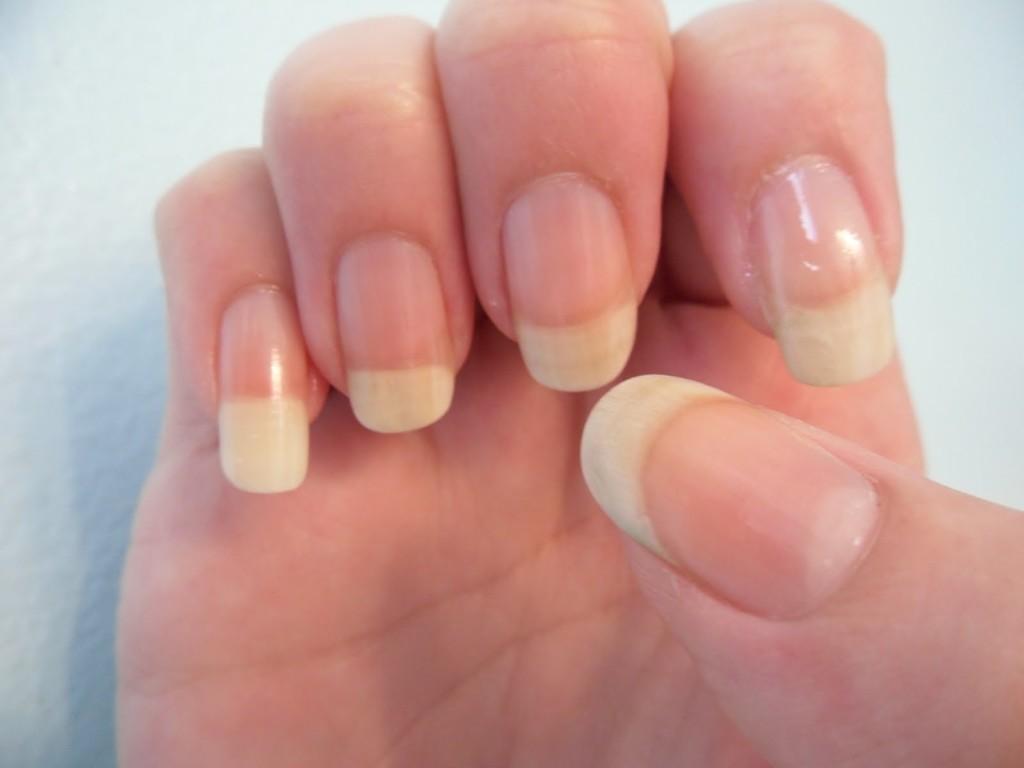 Грибок ногтей у ребенка 7 лет