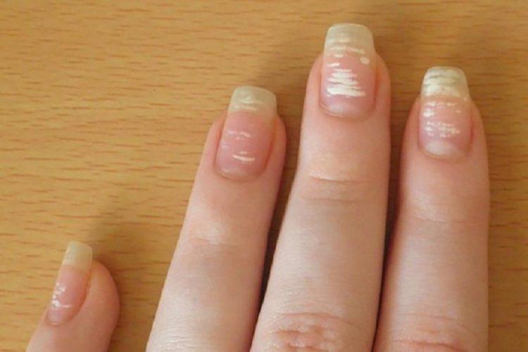 Ногти с пятнами