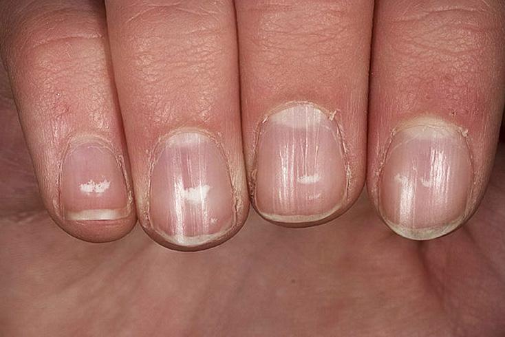 Почему на ногтях появляются белые полоски