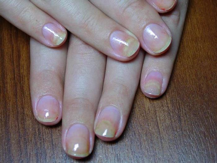 болезни ногтей2
