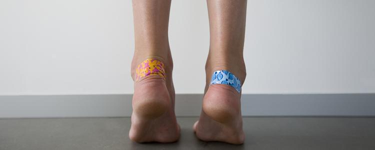 Мозоли на ногах (1)