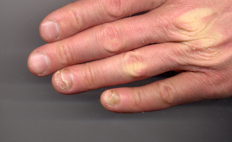 болезней ногтей на руках (1)-2