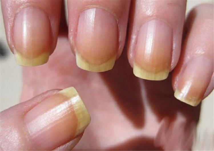 болезней ногтей на руках (1)