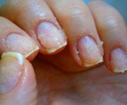 болезней ногтей на руках (2)-2