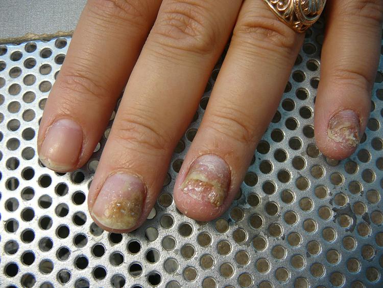 болезней ногтей на руках (3)