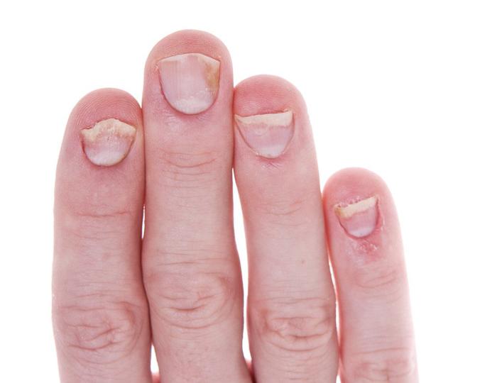 отслаиваются ногти на руках (3)
