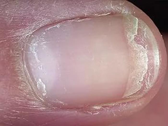 отслаиваются ногти на руках (5)