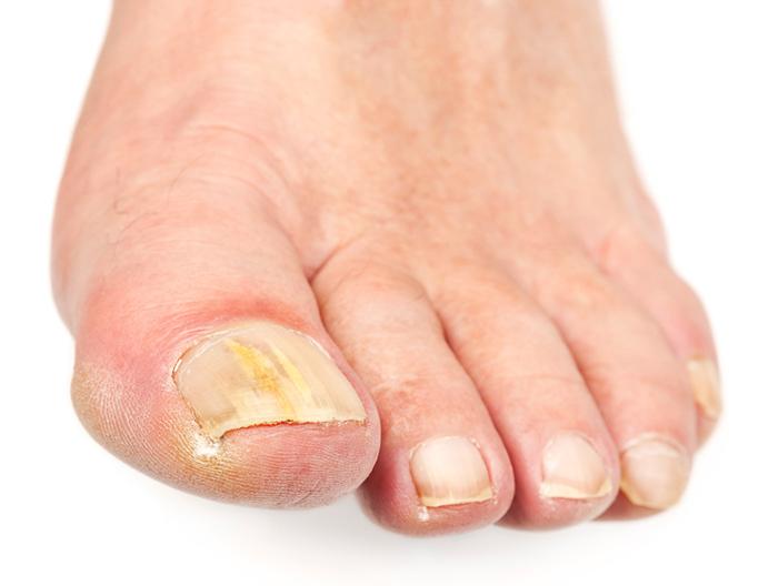 почему ноготь на ноге пожелтел (6)