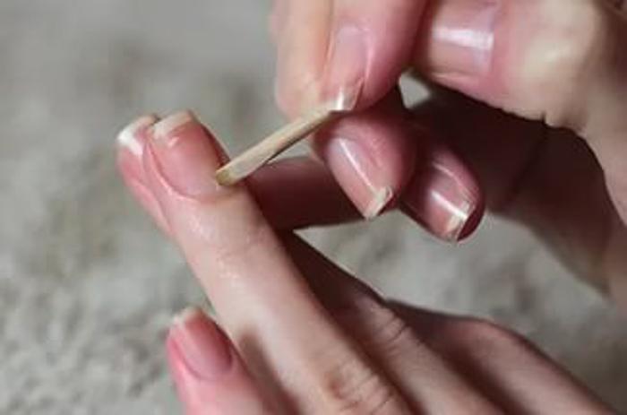 Ванночки для сухой кожи вокруг ногтя thumbnail