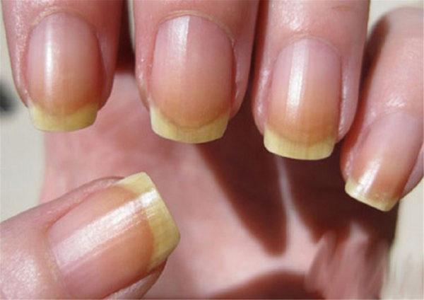 Почему жёлтое пятно на ногте
