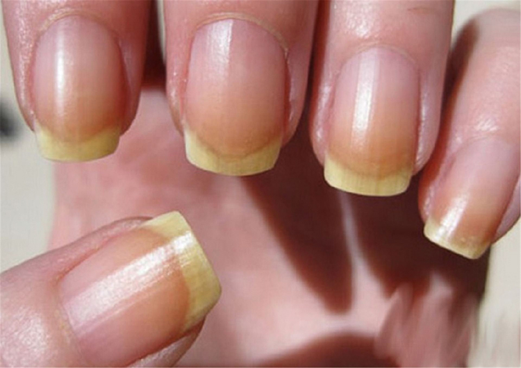 желтые ногти (1)