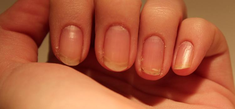 желтые ногти (5)