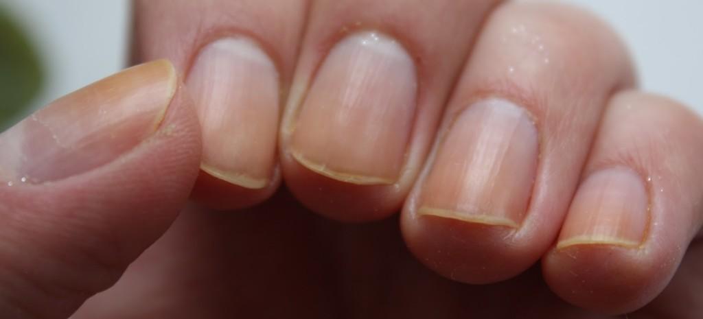 желтые ногти (6)