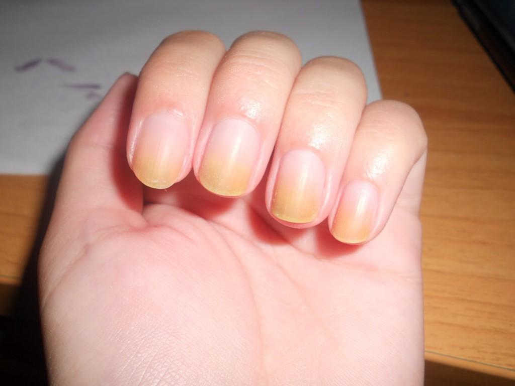 желтые пятна на ногтях рук (5)