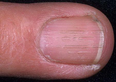 Вертикальные линии на ногтях