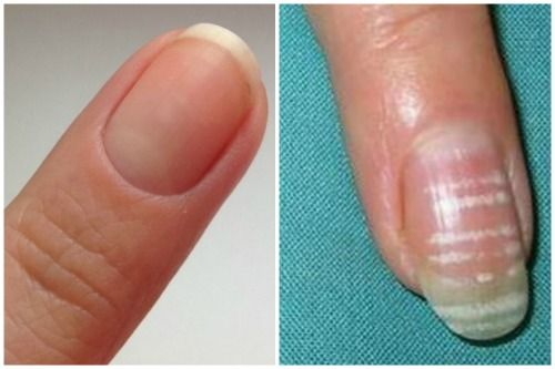 Как избавиться от светлых полосок на ногтях