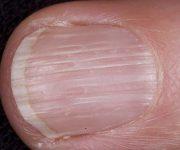 продольные полосы на ногтях рук
